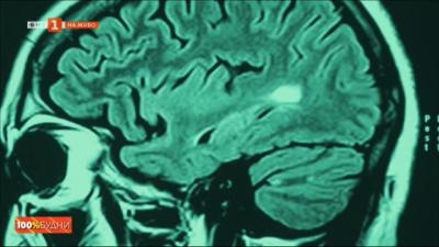 Световен ден на мозъка