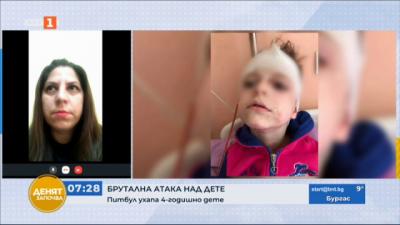 Питбул нападна и нахапа 4-годишно дете