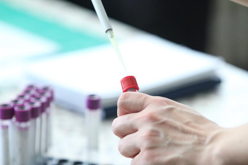 Bulgaria has allocated BGN 15 million for antigen tests