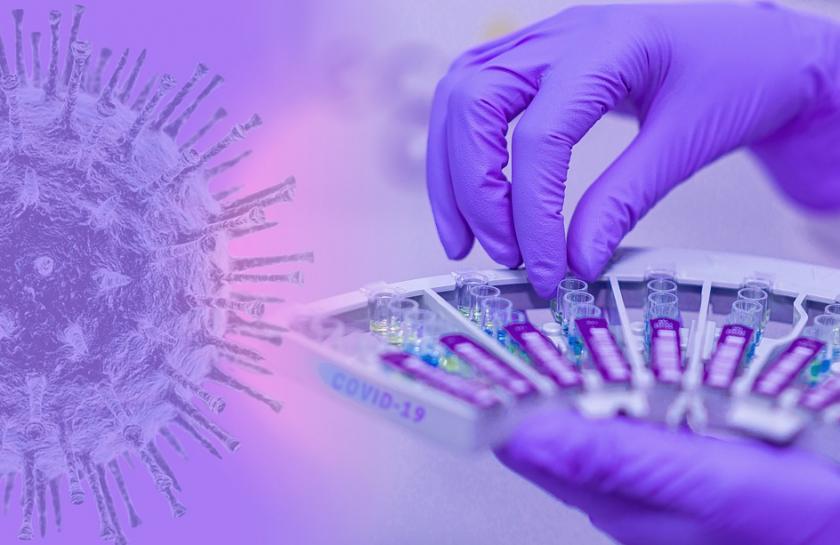 Ще се променят ли данните за разпостранението на COVID-19 с отчитането и на антигенните тестове