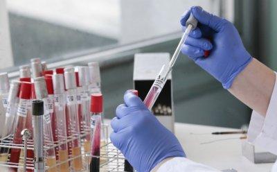 Coronavirus in Bulgaria: 462 new cases from 3,658 tests