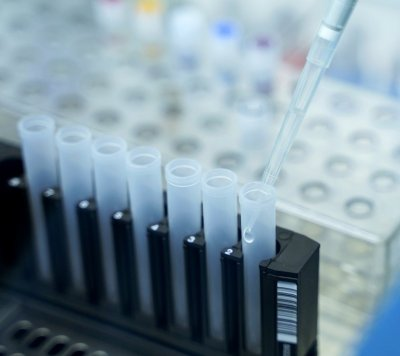 Coronavirus in Bulgaria: 55 new cases, daily percentage of positive tests is at 0.4%