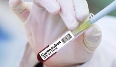 Coronavirus in Bulgaria: 161 new cases
